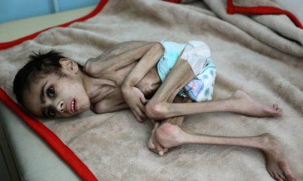 Bu Yıl Yemen'de 400 Bin Çocuk Yiyecek Bulamadığı İçin Ölecek, 2.3 Milyonu da Aç Kalacak